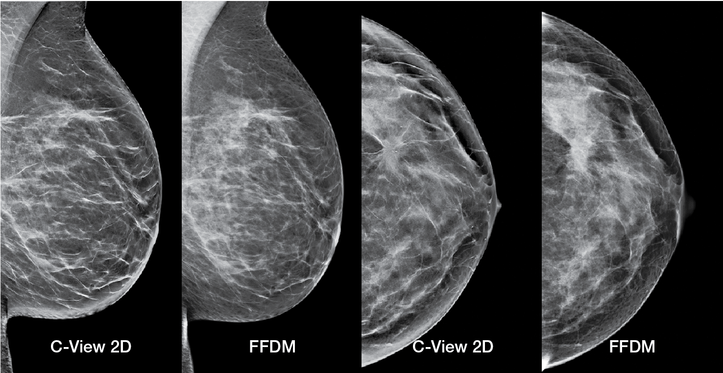 Reveal more with low-dose, highly accurate 3D Mammography™ exams